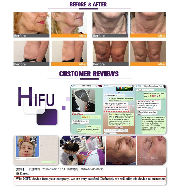 5 Cartridge Skin Tightening Hifu Machine US310B