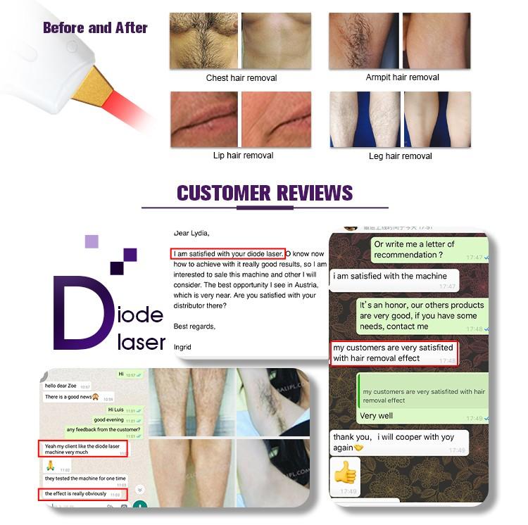 755 808 1064 Depilation Laser Hair Removal Machine US425