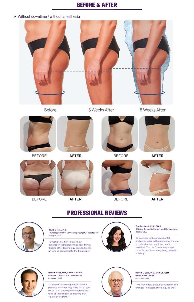 Hiemt Muscle Stimulator Body Emsp Belly Fat Reducing Machine US380B-4H