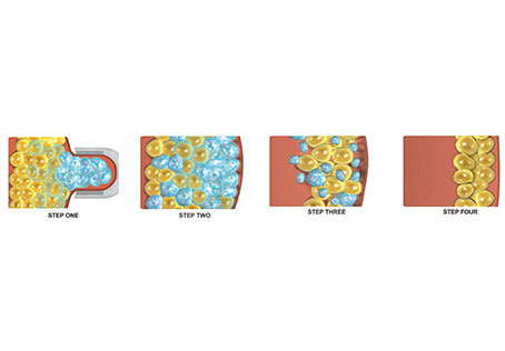 Cryopreservation technique