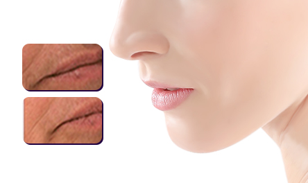 Lip Hair Removal