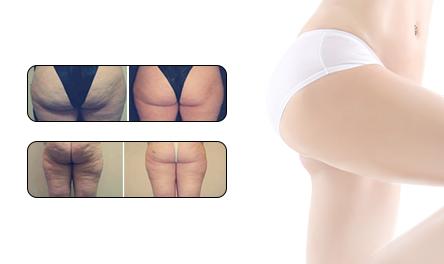 Thin buttocks