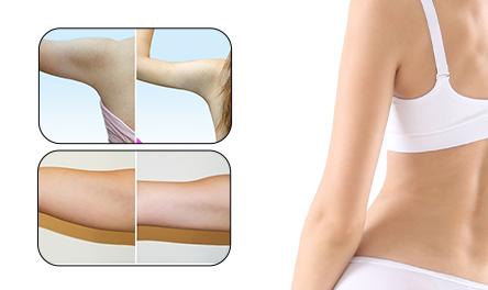 Thin Arm