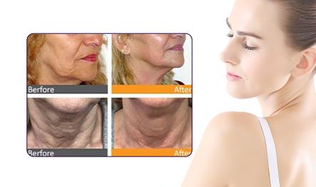 Removing Neck Wrinkles