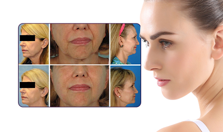 Remove Wrinkles Around Mouth