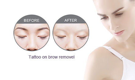 Tattoo on Brow Remove