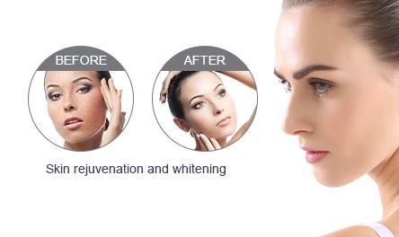 Skin Rejuvenation and Whitening