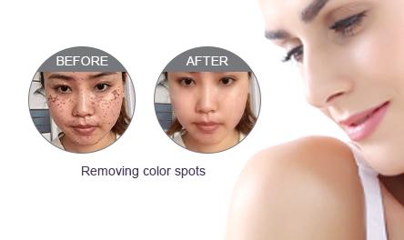 Removing Color Spots